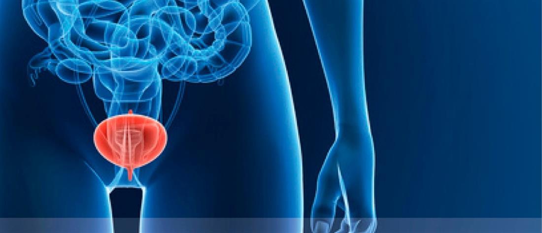 Πρόπτωση των πυελικών οργάνων στη γυναίκα