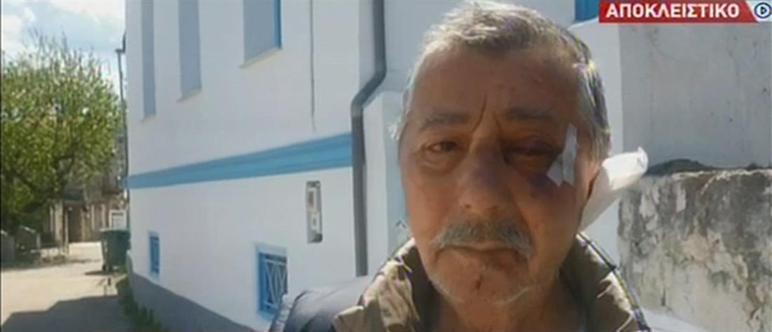 Αποκλειστικά στον ΑΝΤ1: κουκουλοφόροι ληστές βασάνισαν ζευγάρι (βίντεο)