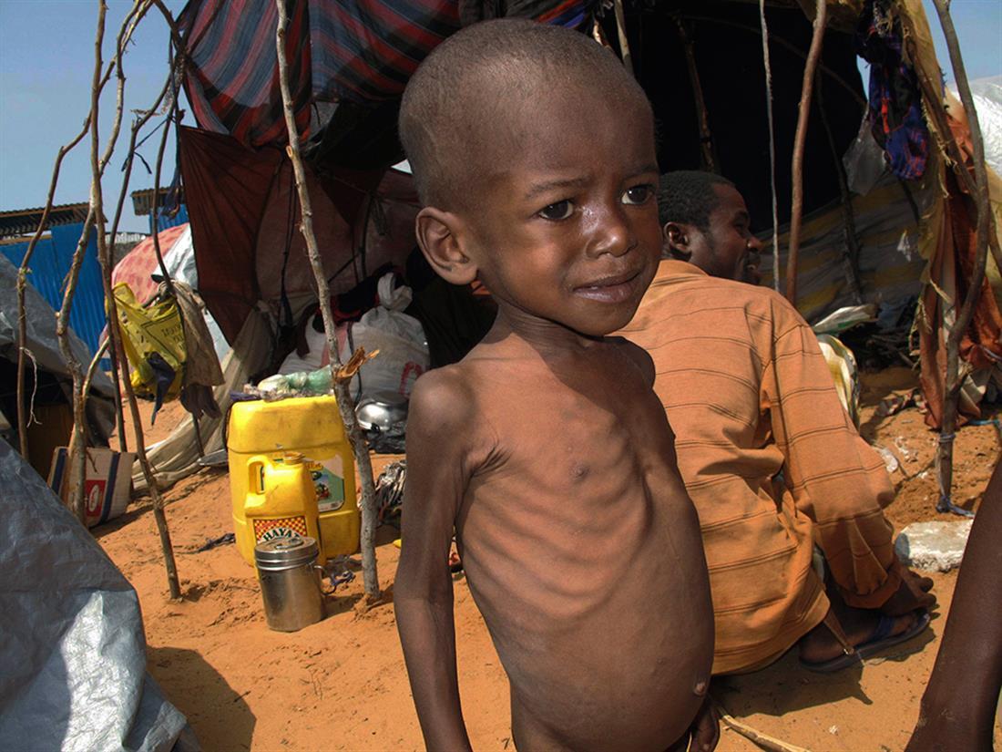 AP - Νότια Αφρική - πείνα