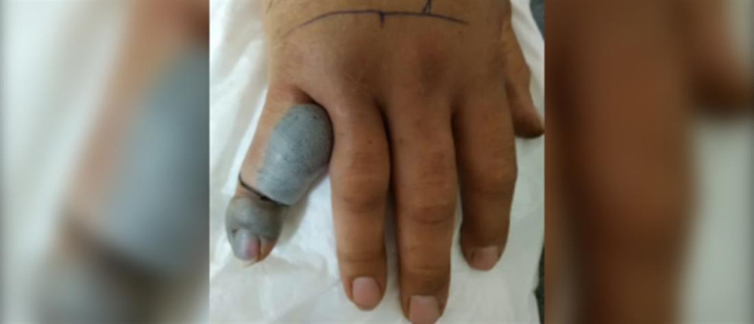 Του δάγκωσε οχιά το χέρι (εικόνες)