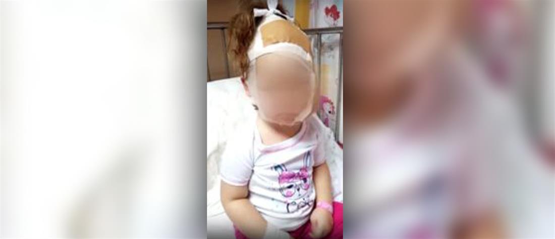 Σκυλιά δάγκωσαν στο κεφάλι παιδί (σκληρές εικόνες)