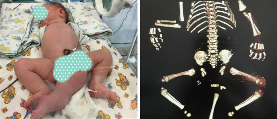 Γεννήθηκε με τρία πόδια, δύο πέη και χωρίς πρωκτό (εικόνες)