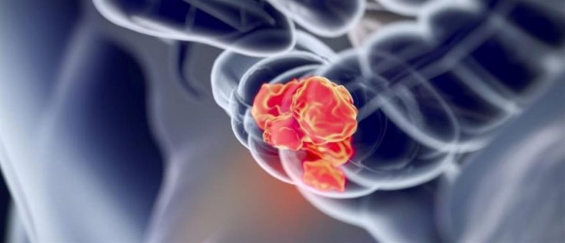Ο καρκίνος του παχέος εντέρου και η θεραπευτική του αντιμετώπιση