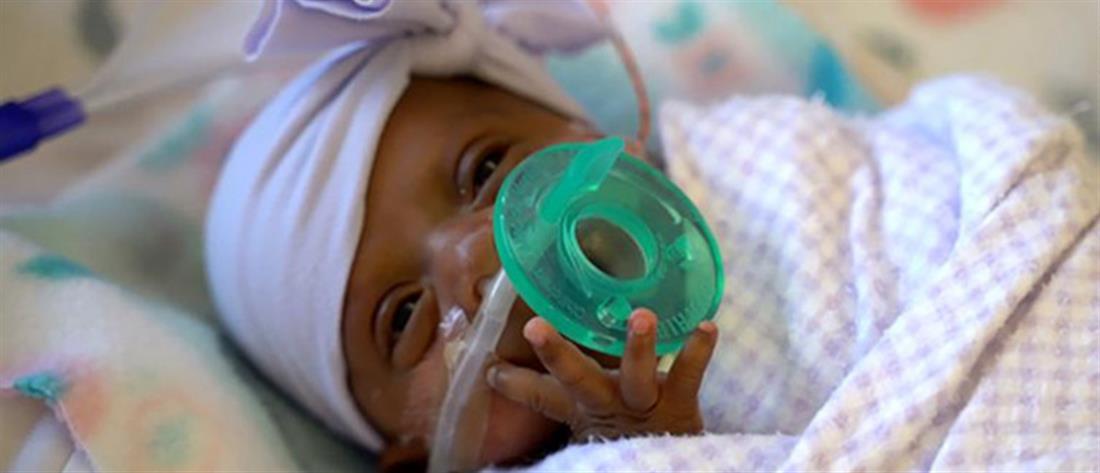 """Κέρδισε τη """"μάχη"""" για τη ζωή το κοριτσάκι που γεννήθηκε 245 γραμμάρια!"""