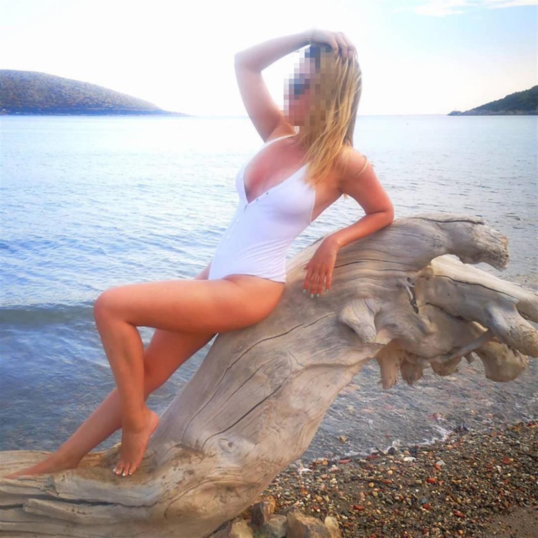 Βιτριόλι - 34χρονη - Καλλιθέα
