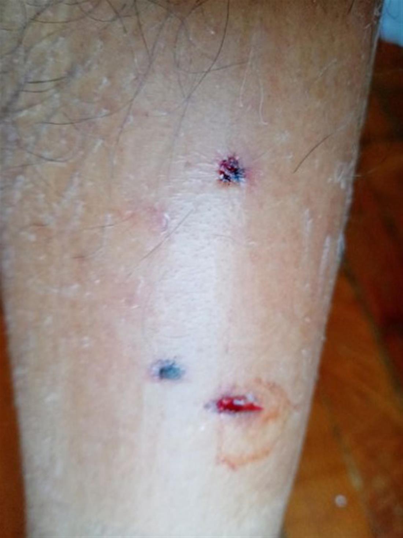 Λαμία - Άγιος Λουκάς -  Επίθεση σκύλου - δικυκλιστής