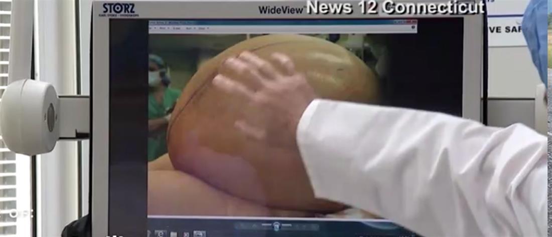 Πρωτοφανές! Αφαιρέθηκε όγκος 60 κιλών από το σώμα γυναίκας (φωτό)