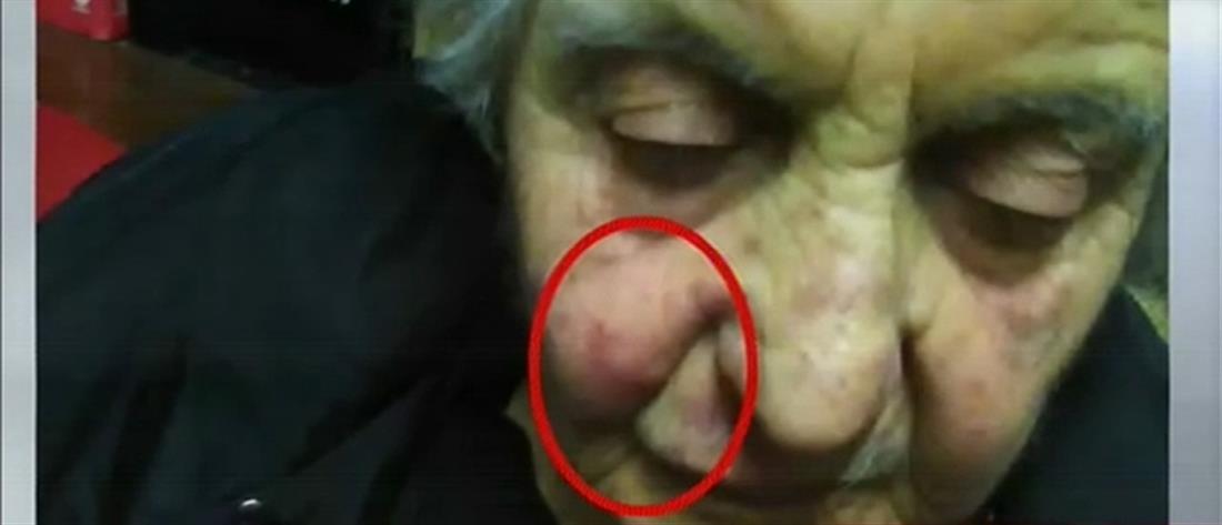 Συγκλονιστικές μαρτυρίες στον ΑΝΤ1 για τον θάνατο της 88χρονης μετά από ληστεία (βίντεο)
