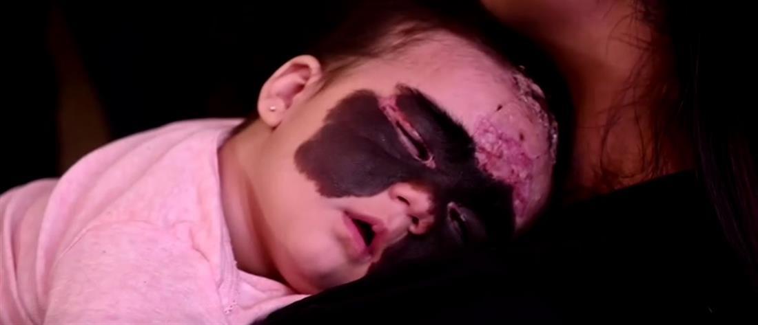 """Ξεκίνησε η θεραπεία για το μωρό """"Μπάτμαν"""" (βίντεο)"""