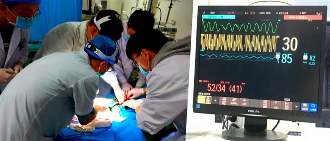 Ιατρικό θαύμα! Επανέφεραν ασθενή της οποίας η καρδιά είχε σταματήσει για 72 ώρες (βίντεο)