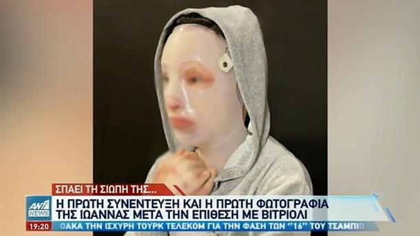 Η πρώτη φωτογραφία της Ιωάννας μετά την επίθεση με βιτριόλι
