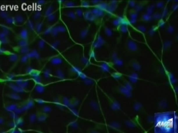 Πρωτοποριακές έρευνες για βλαστοκύτταρα