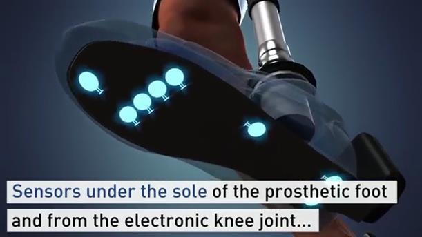 Ακρωτηριασμένοι αποκτούν ξανά αισθήσεις στο προσθετικό πόδι τους