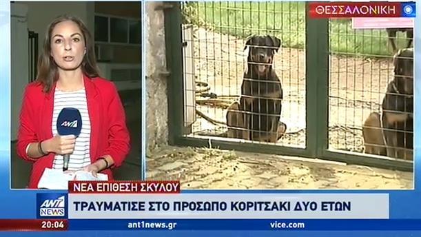 Σκύλος επιτέθηκε σε κοριτσάκι – Τραγωδία στο γήπεδο της Καλαμαριάς