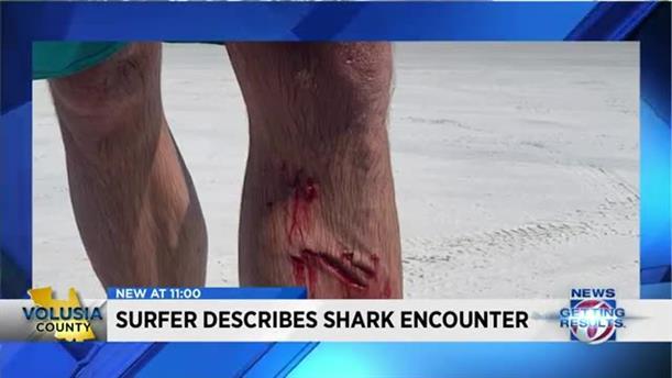 Καρχαρίας επιτέθηκε σε σέρφερ στη Νέα Σμύρνη της Φλόριντα