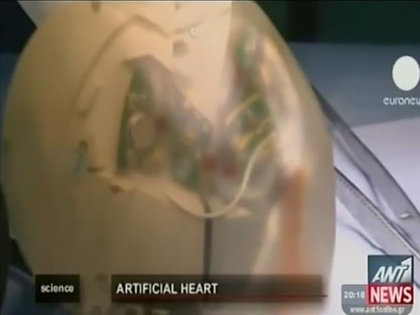 Πράσινο φως για εμφύτευση τεχνητής καρδιάς