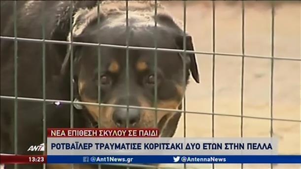 Εκτός κινδύνου νοσηλεύεται η μικρή που δέχθηκε επίθεση από σκύλο