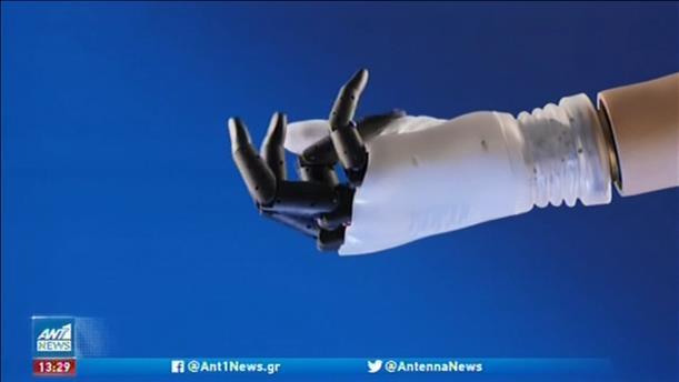 Ελπίδα σε ασθενείς δίνει ρομποτικό χέρι