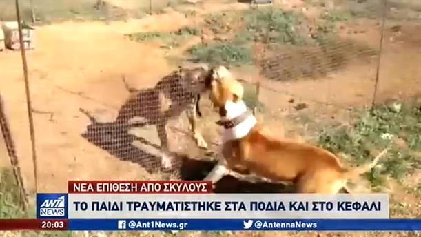 Επίθεση από σκύλους δέχθηκε 9χρονος στις Σέρρες
