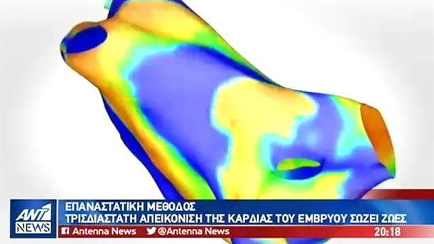 Σωτήρια η τρισδιάστατη απεικόνιση της καρδιάς του εμβρύου