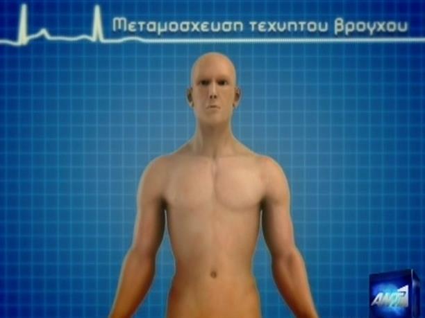 Επιτυχής μεταμόσχευση τεχνητού βρόγχου