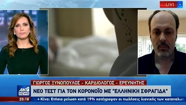 """Ο Γιώργος Ξυνόπουλος στον ΑΝΤ1 για το """"ελληνικό τεστ"""" για τον κορονοϊό"""