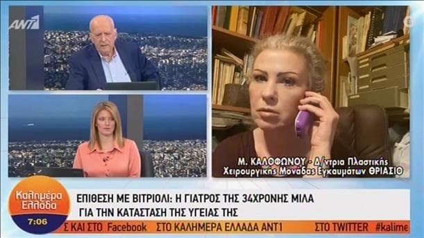 Μαρία Καλοφώνου - Διευθύντρια Πλαστικής Χειρουργικής Μονάδας Εγκαυμάτων ΘΡΙΑΣΙΟ – ΚΑΛΗΜΕΡΑ ΕΛΛΑΔΑ – 26/05/2020