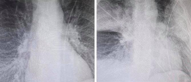 Ακτινογραφία - σοκ: Η ραγδαία επιδείνωση 38χρονου ασθενή με κορονοϊό