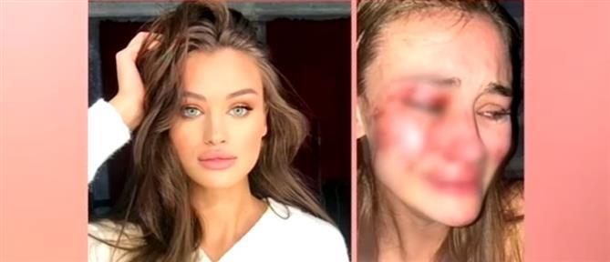 Θύμα άγριου ξυλοδαρμού καταγγέλλει ότι έπεσε top model, σε κλαμπ της Τουρκίας (βίντεο)