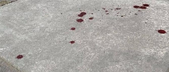 Θεσσαλονίκη: αιματηρό επεισόδιο με πυροβολισμούς στον Εύοσμο (εικόνες)