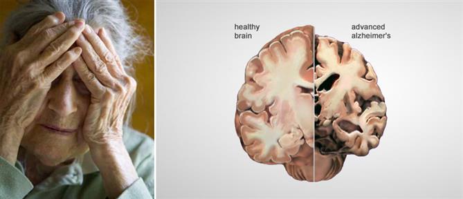 Μάθε ποια εμβόλια πιθανόν προστατεύουν από το Αλτσχάιμερ