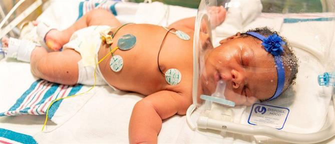 Μωρό γεννήθηκε στις 9/11, στις 9:11 και με βάρος 9,11 λίβρες (εικόνες)