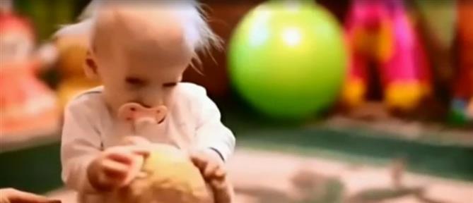 Οκτάχρονο κοριτσάκι πέθανε από… γηρατειά (βίντεο)