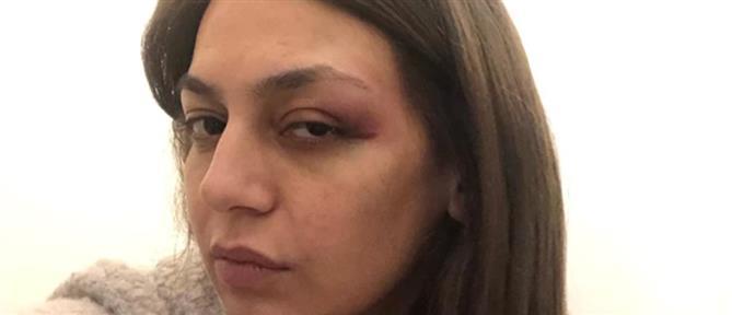 ΜέΡΑ25 - Μαρία Απατζίδη: Με χτύπησαν τα ΜΑΤ